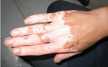 郑州导致手部发生白癜风的常见原因